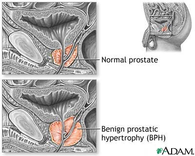 Nursing Diagnosis and Nursing Intervention for Benign Prostatic Hyperplasia